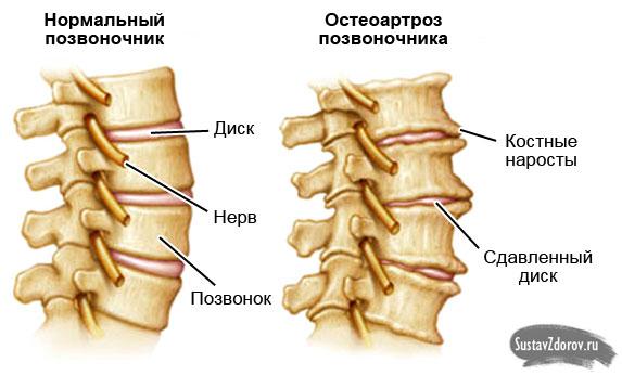 Остеоартроз дисков позвоночника что это такое